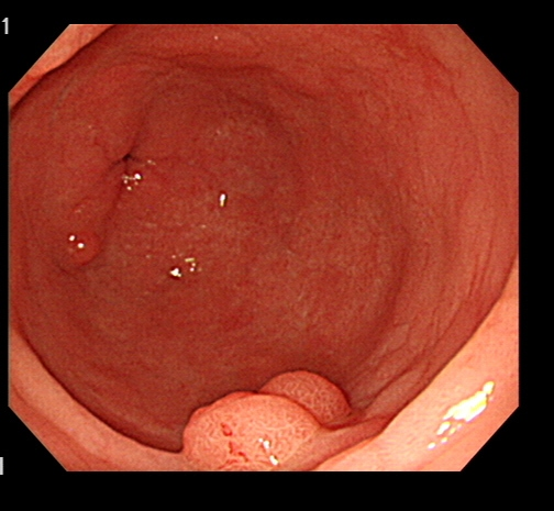 Протезирование голеностопного сустава: симптомы, причины и реабилитация после протезирования голеностопа