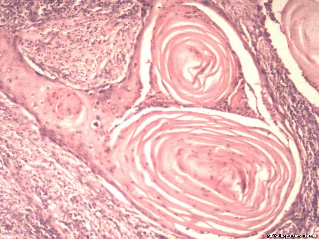 Плоскоклеточный рак2.jpg