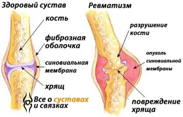Как лечить осложнения после ангины на суставах