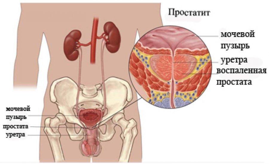 предохраняться ли при лечении простатита