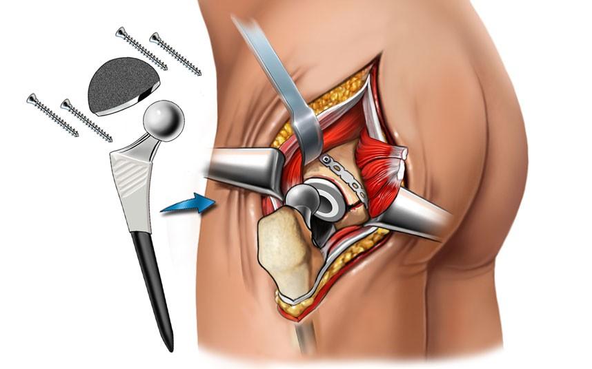 Как похудеть перед операцией на тазобедренный сустав