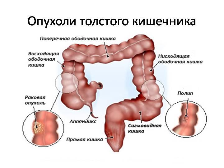 Рак ЖКТ2.jpg