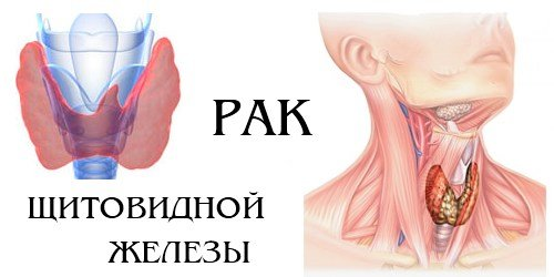 intimnaya-zhizn-pri-gipotireoze