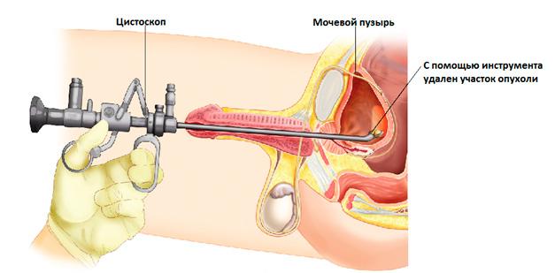 Рак мочевыводящей системы и мочевого пузыря: диагностика, лечение ...