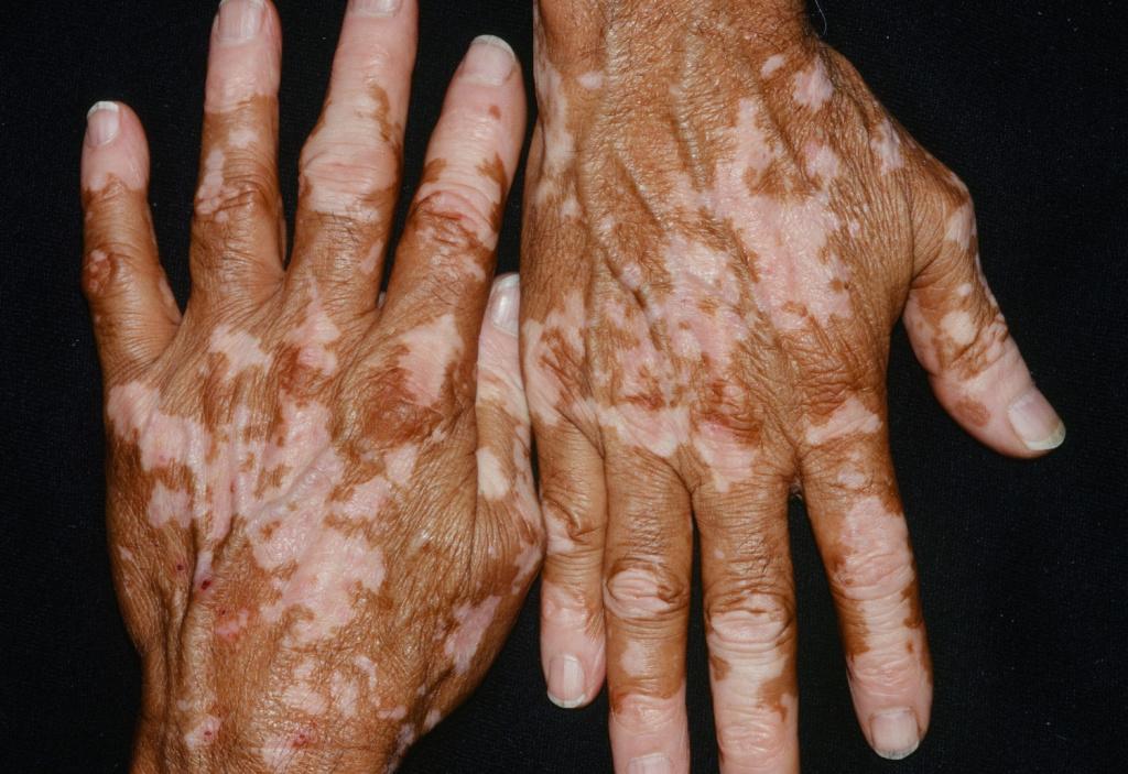 дистрофия кожи фото название растения эуфорбия