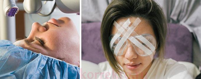 ухудшение зрения после лазерной коррекции