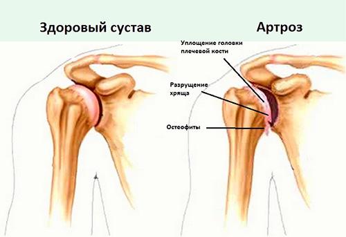 Как лечить артроз плеча народными средствами