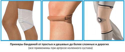 Виды вспомогательных суппортов при заболевании коленного сустава